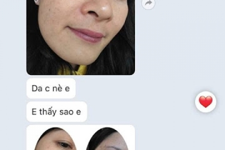 Trị Mụn, Sạm da của Chị Thanh Bích- GV ở huyện Phước Long, Bạc Liêu